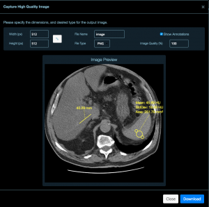 DICOM viewer for Nextcloud continues to make progress